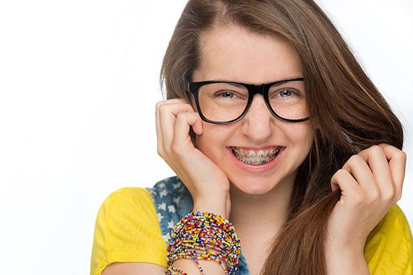 Coloured braces is popular for kids or teenager who need to wear braces.