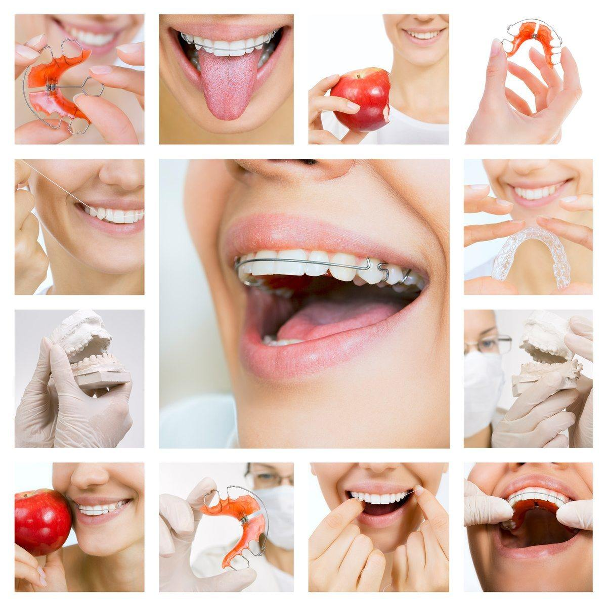 various dental braces on patients