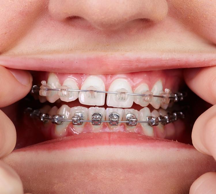 avoid-orthodontic-emergencies
