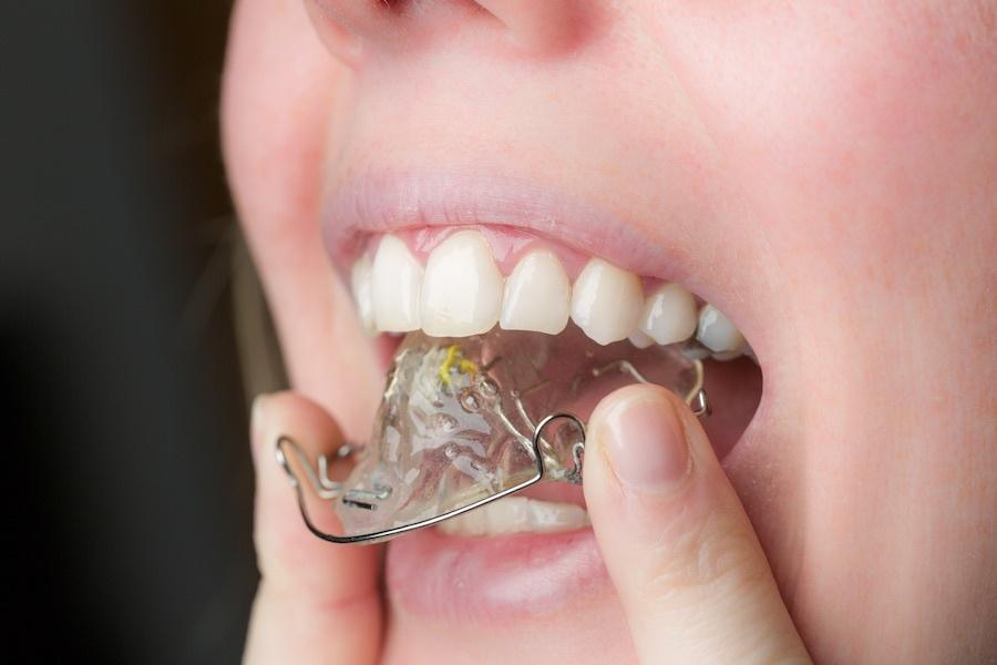 A retainer for after braces