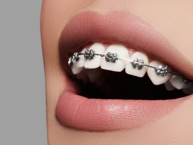 traditional braces cost can base on different situation and adjust