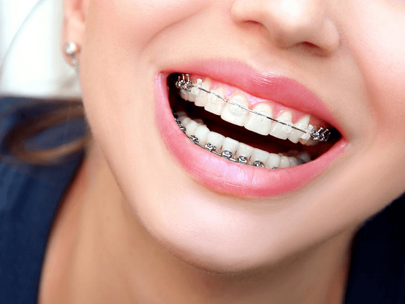 if you are wonder about the cost of this kind of braces in Vancouver, please contact us