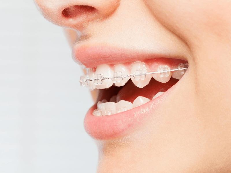 side look of traditional braces