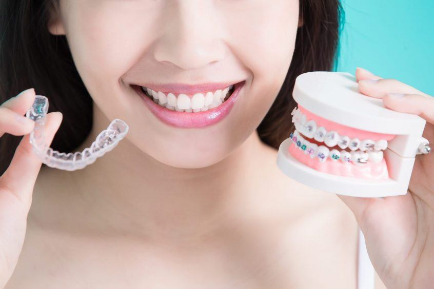 Which Braces Are The Most Effective