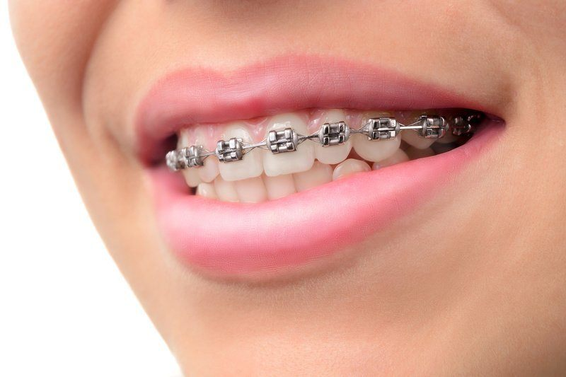 braces and magnets
