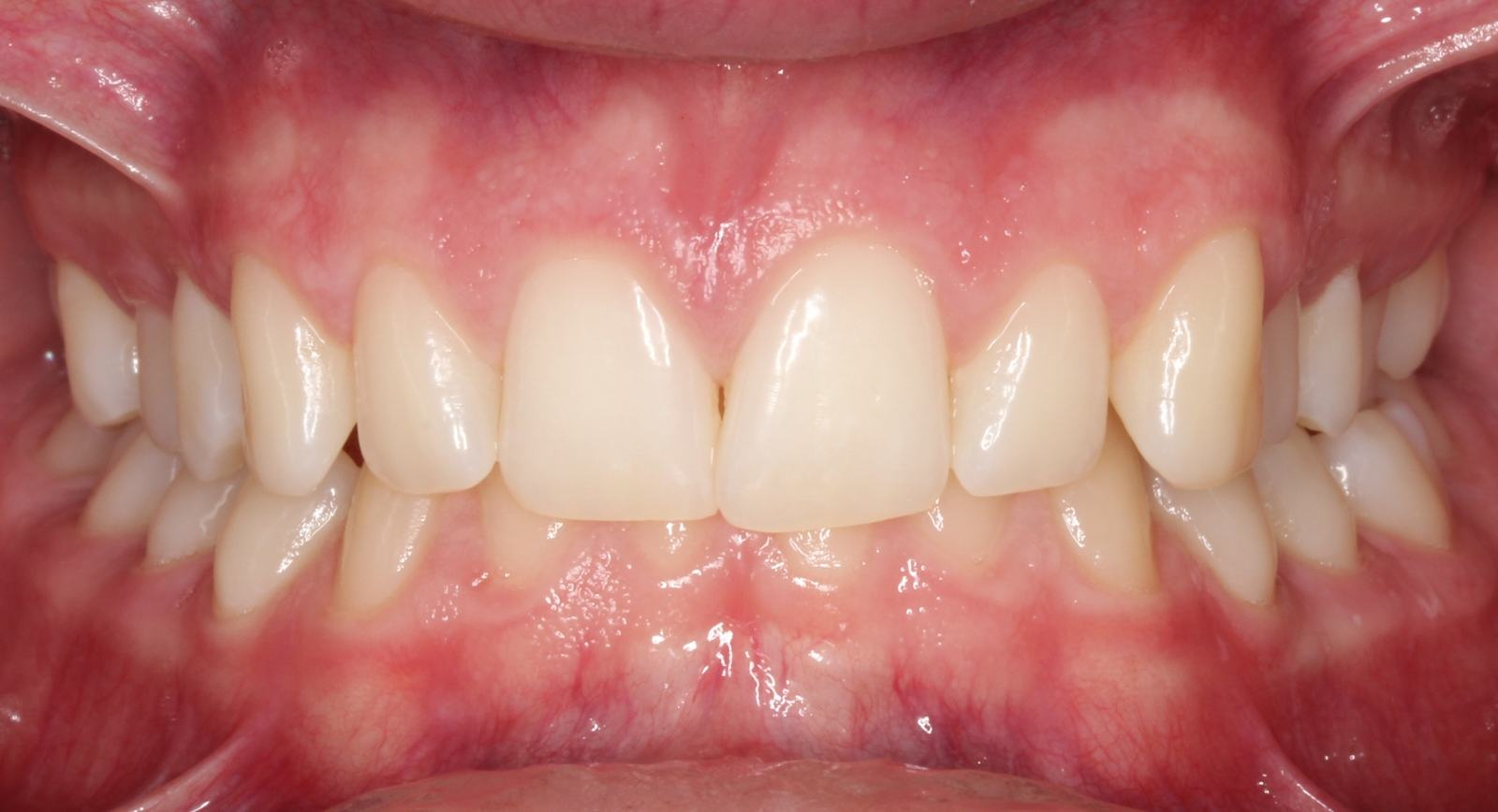 intraoral1