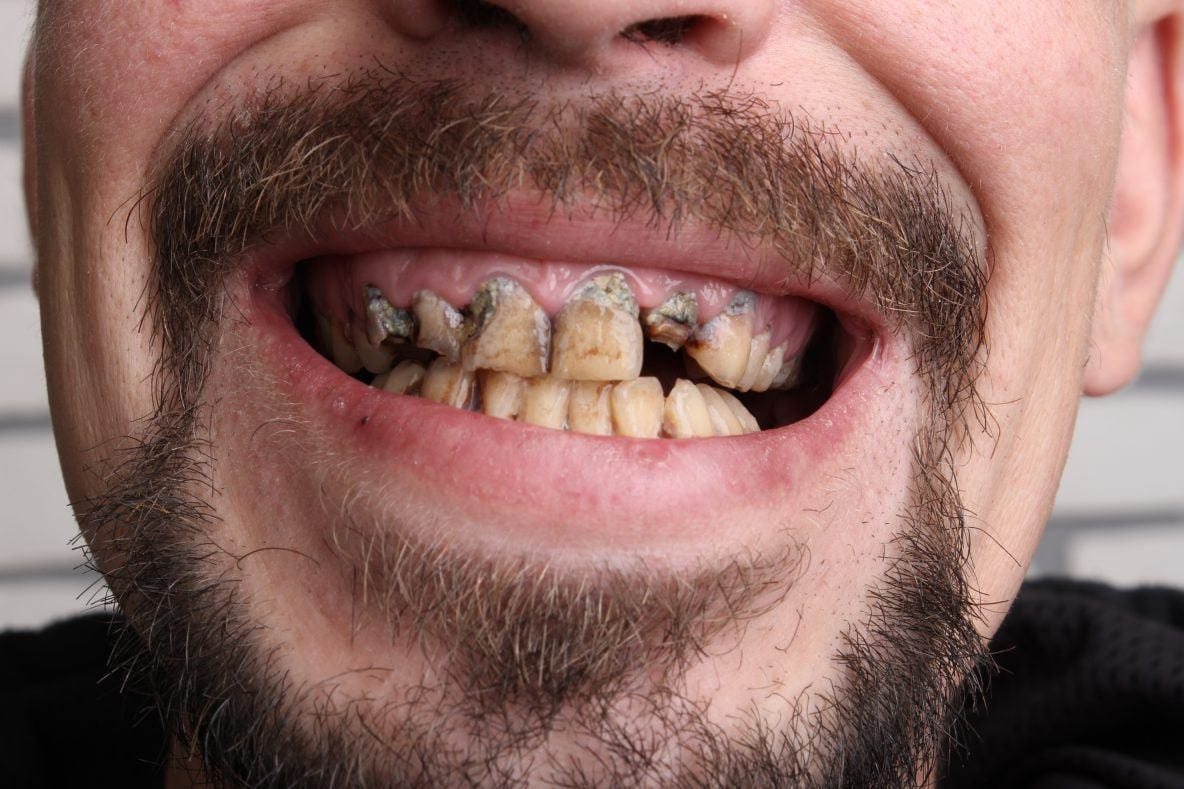 damaged teeth with tobaco