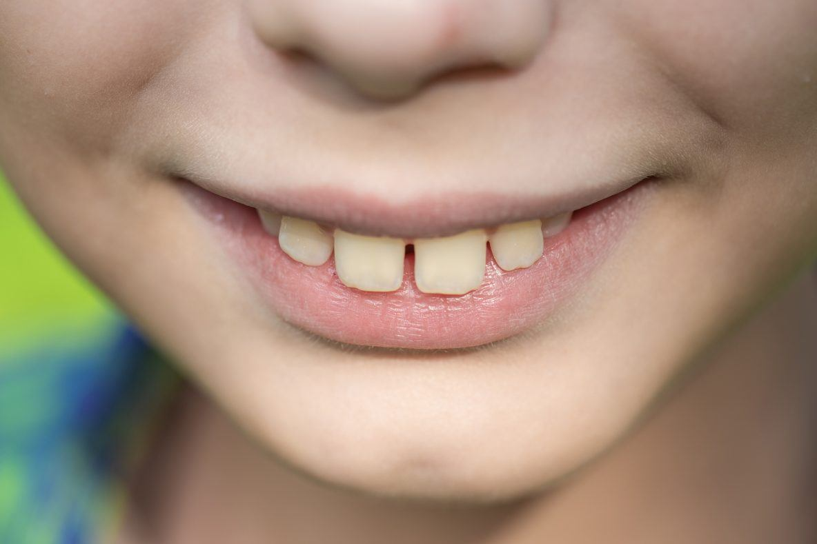 Close-lookup-of-child-teeth