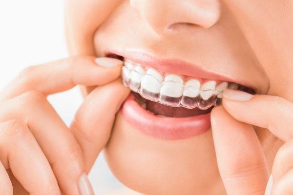 wear Invisalign can make your smile looks better