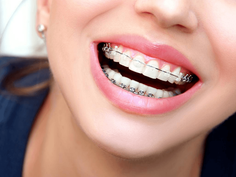 clear braces is an option for crooked and overlapping teeth