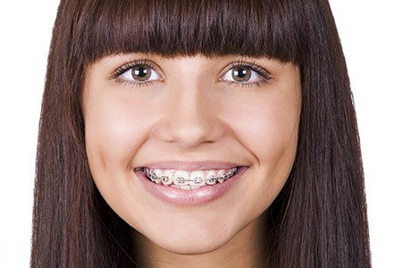 traditional braces is one of the braces treatments you can get it from best south Surrey orthodontist