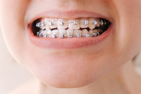 braces are common to use for strengthening teeth for kids