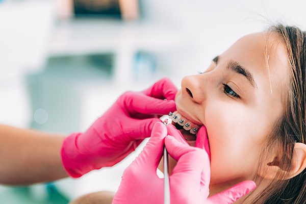 South Surrey Orthodontist is checking girl dental braces